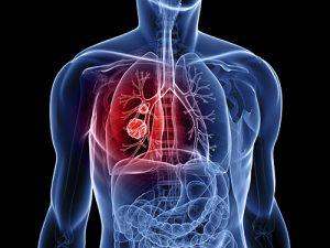 phương páp điều trị bệnh ung thư phổi