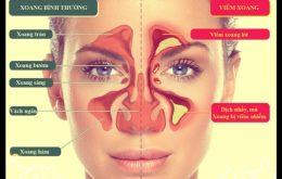 Biểu hiên của bệnh viêm xoang mũi