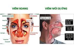 Biểu hiện của bệnh viêm xoang mũi
