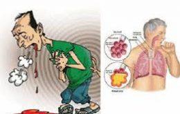 biểu hiện của bệnh ung thư phổi