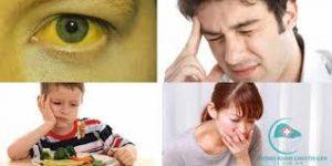 các triệu chứng bệnh viêm gan B